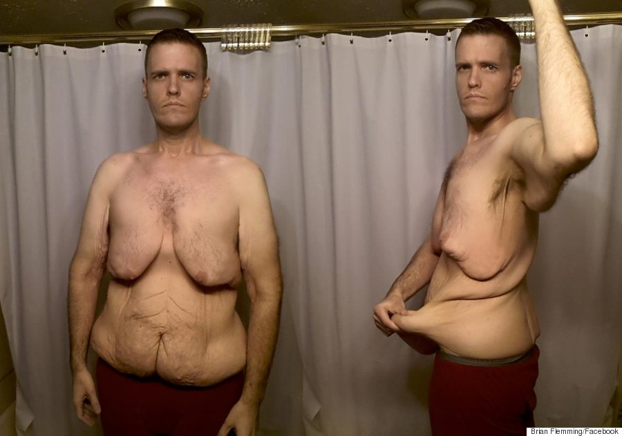o-BRIAN-FLEMMING-WEIGHT-LOSS-900 (1)